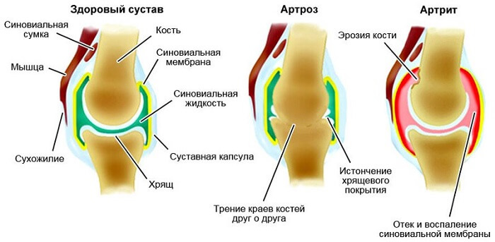 liigeste haiguste sugisel