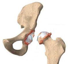 kuidas eemaldada keha liigendite valu liigeste artroosi rahvaretseptid