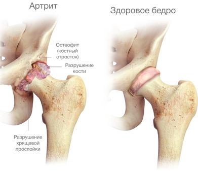 artrosi ravimine brachiaalsete uhiste ulevaatuste kiire geeli ulevaated osteokondroosis