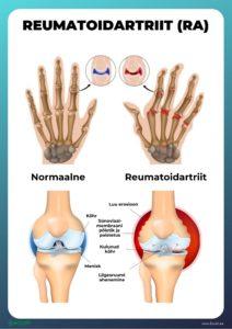 vagistamise artroosi ravi vitamiinikompleksi liigeste raviks