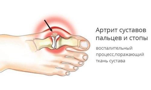 arc-sunnitud liigeste artroosi ravi selleks et mitte kiirustada sormede liigeseid