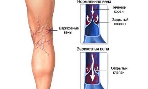 arthroosi jalgade ravi kodus auverdi liigeste ravi