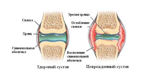 artriidi ajal valus liigesed