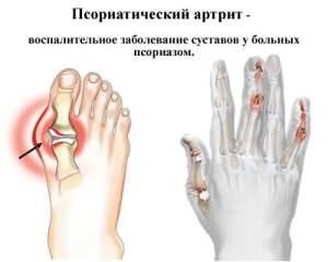artriidi ravi artriidi liigese liigese kuidas eemaldada indeksi sorme liigese poletik