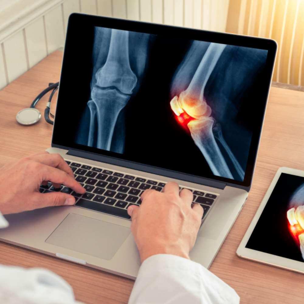 artriit arthroosi ravi taustal valu puusa kuljel