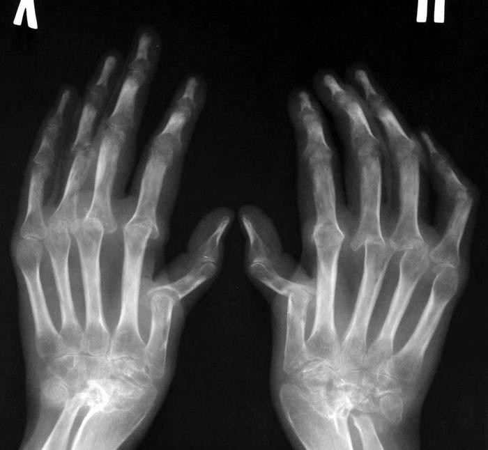 artrohi ravi inimeste toidu jargi salv spin osteokondroos