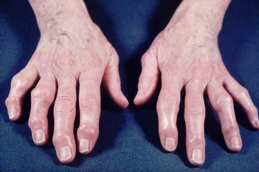 artrosiplasma ravi