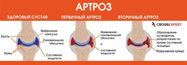 teaduse liigeste ravi klopsake kuunarnuki liigeste ravi
