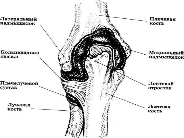 kuidas eemaldada puusaliigese poletik artroosis