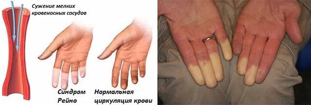 liigeste magno ravi