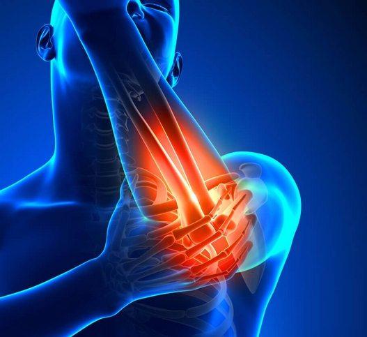 artriidi valu olaliigendites