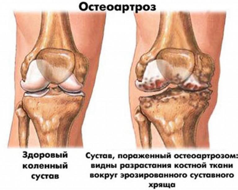 crunch liigesed kogu keha pohjustab ravi kuidas maarata artriit sormedele