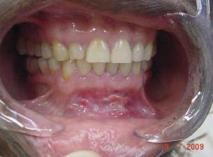 kuidas ravida suu valu