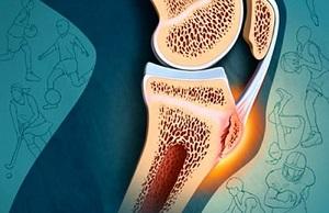 osteokondroos ja artroos