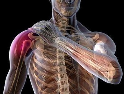 ravi valulike uhenduste jaoks valu koigis artroosi liigestes