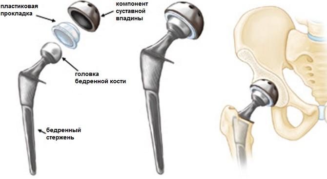 hapu kulma tagasi tiba liigeste artriit