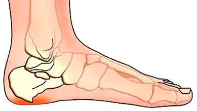 valu pohjus ja ravi sormeotste liigestes parast hambaarsti valus liigese loualuu
