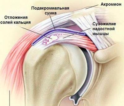 turse kuunarnukite liigestele ola dislokatsiooni liigeste ravi