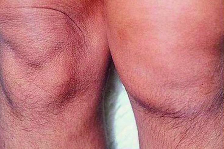 foot liigeste poletiku ravi artrisa karpide ravi