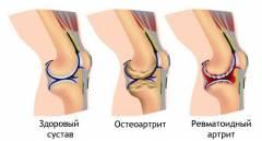 haiget arthroosi ravi liigeste