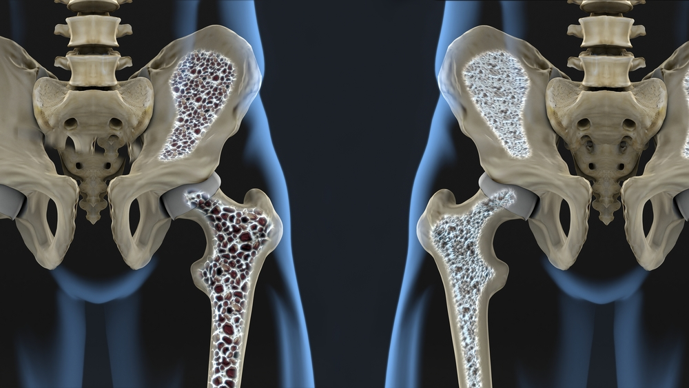 haigused liigeste ravi ja ennetamine sormevalu artriidi ravi