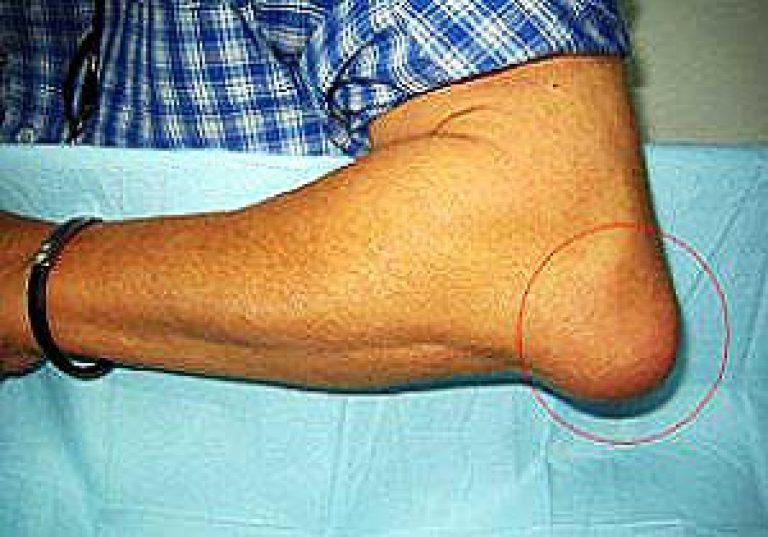valu jalgade liigestes pohjustab valu ola kuunarnukis