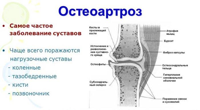 eemaldage valu jalgade artriidi valu