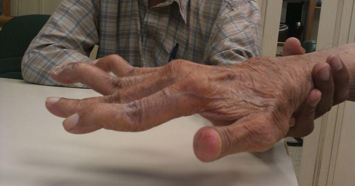 keskmine sormehaigus hurt harjade sormed
