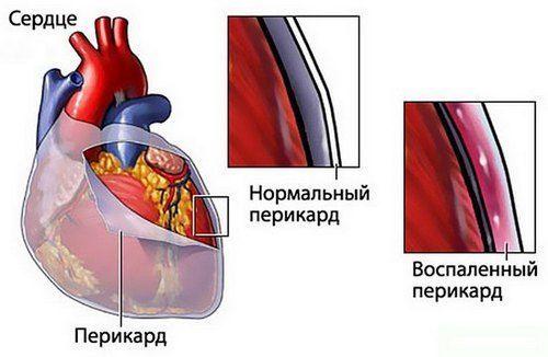kislovodski liigeste ravi kuidas eemaldada sorme sorme poletik suurel jalal