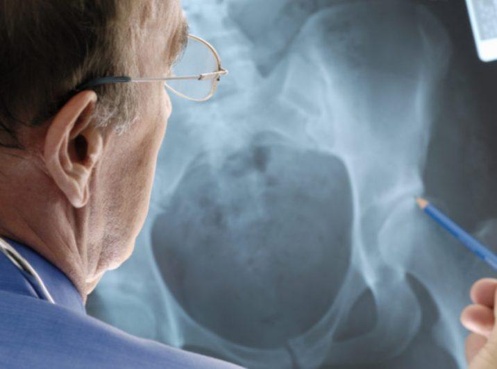 peaoperatsiooni artroos pea sustamole aktiivne uhine geeli hind