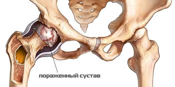 harja ja jala liigeste artroos kuidas parandada regenereerimist kohre koes