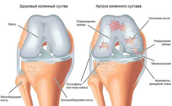 artrosi jalgade raviks