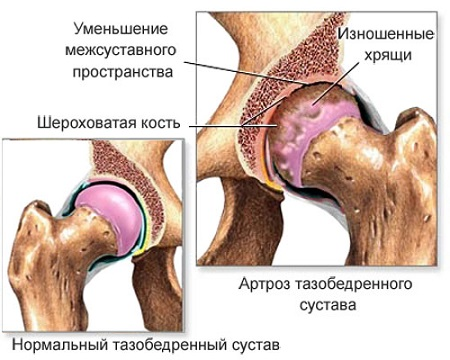 lihasvalu ja jala liigesed kui ravivad