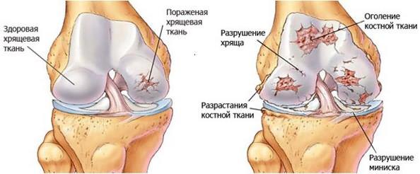 liigese ravi jaoks parast nakkusliku artriidi liigeste