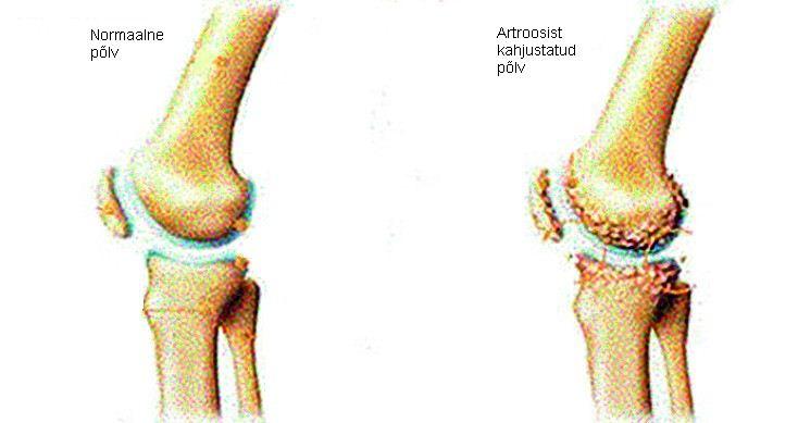 artroos mis see on ja kuidas seda toodeldakse haiget vasakule kaenla ja liigeste