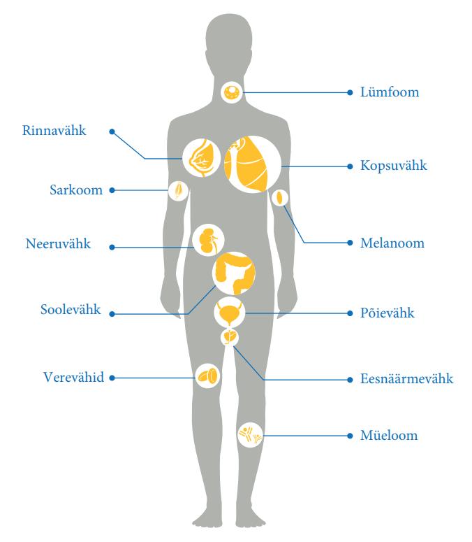 artroosi 2 kraadi ravi kodus hoidke vasakule reie uhises