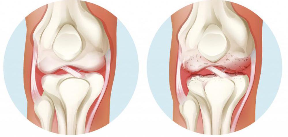 liigeste ravi topinampurgi