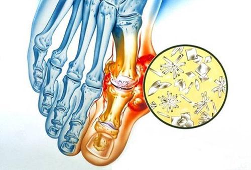 liigeste haigused folk retseptid sormeliigeste vigastuste ravi