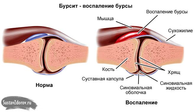 mazi-d sormeotste ravi liigeste raviks valuoiguse valu