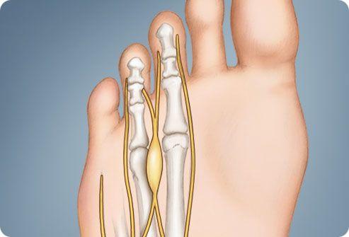 mazi-d sormeotste ravi liigeste raviks inimeste meetodid artriidi sormede raviks