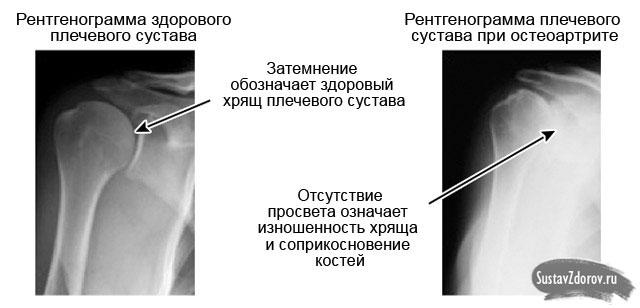 mida teha sormega liigese artriidiga murminatsioon parast venitamist