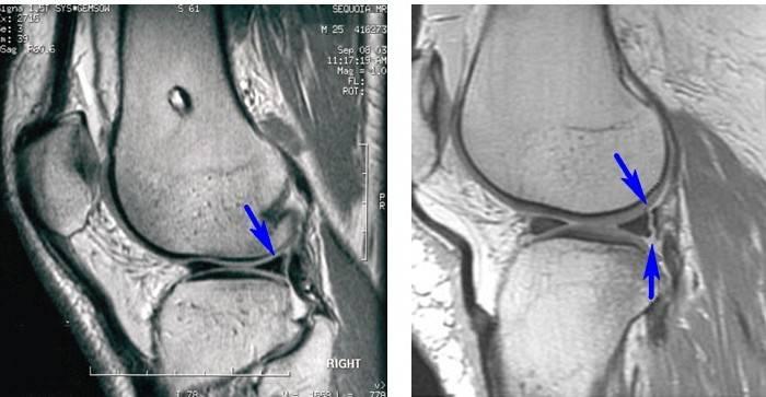 milgamma liigesest valu hupokondrid ja liigesevalu