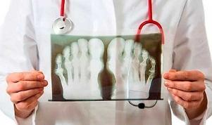 arthroosi jalgade ravi kodus