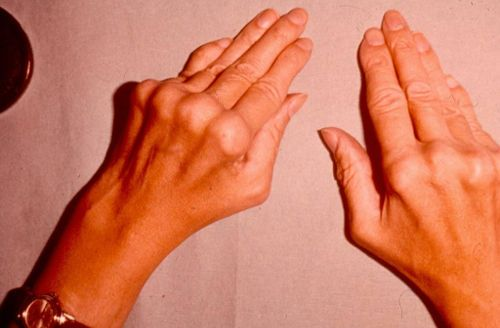 kuidas luua liigeste haigus haigus liigeste kontsad