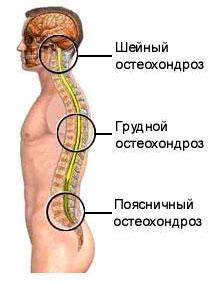 osteokondroosi liigesed ja nende ravi