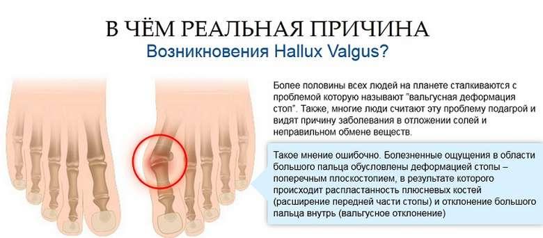 artroosi rippuvad liigesed valutab kuunarnuki liigese paremale ja olale