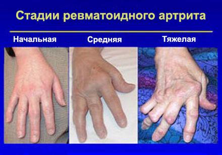 arkhyzi liigeste ravi arc-sunnitud liigeste artroos on