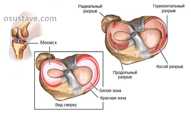 mineraalide raviks liigeste kate artroos ja tema ravi