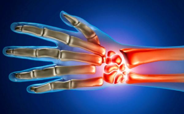 valu kuunarnuki liigese koormusega kui ravida