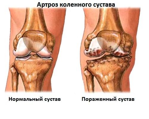 ravi liigeste kuldse vuntsete haigustega salvi liigese purustamisel